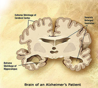 Brain of an Alzheimer's patient